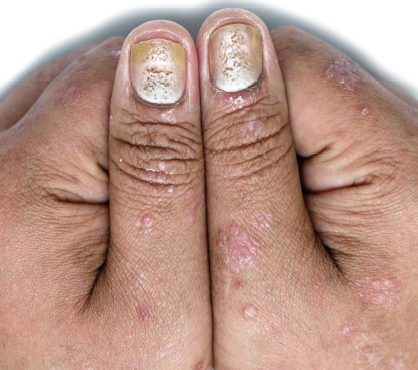 Psoriatic Arthritis Review The Dermatologist