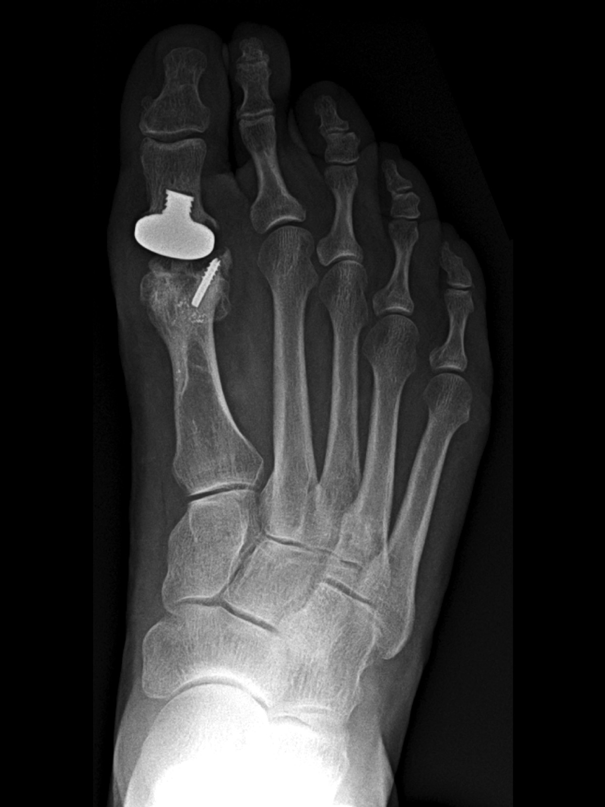 A 59-year-old woman who had a revision of a first metatarsal osteotomy with conversion to a hemi-implant (BioPro First MPJ Hemi Implant, BioPro) due to the development of grade 1 hallux rigidus in 2013. The patient developed persistent pain to her forefoot and avascular necrosis secondary to loosening of the implant and compensatory gait.