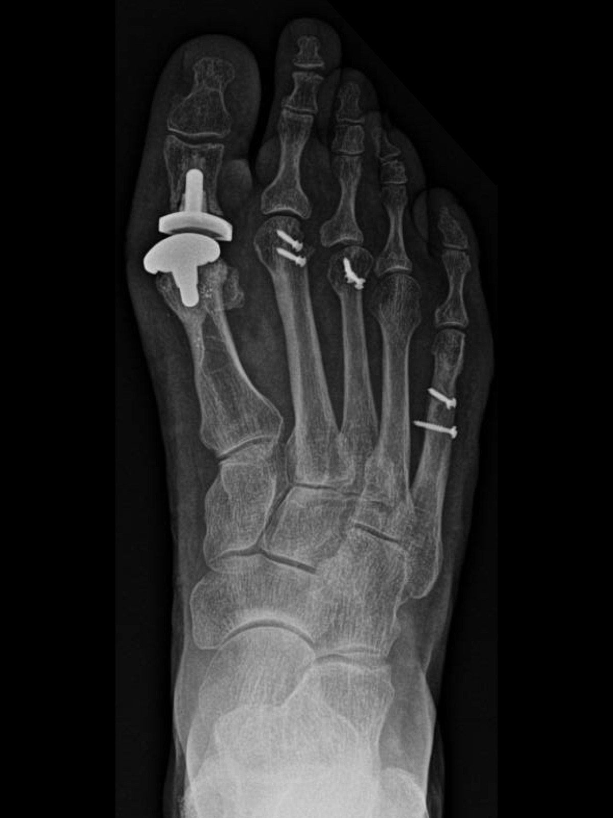 In 2016, the patient had explantation of the hemi-implant with conversion to a two-component total joint prosthesis (Movement Great Toe System, Integra LifeSciences) and shortening osteotomies of her second, third and fifth metatarsals.