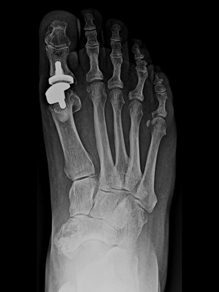 In order to maintain some motion, the patient ultimately had explantation of her hemi-implant with conversion to a two-component total joint prosthesis (Movement Great Toe System) in 2016.