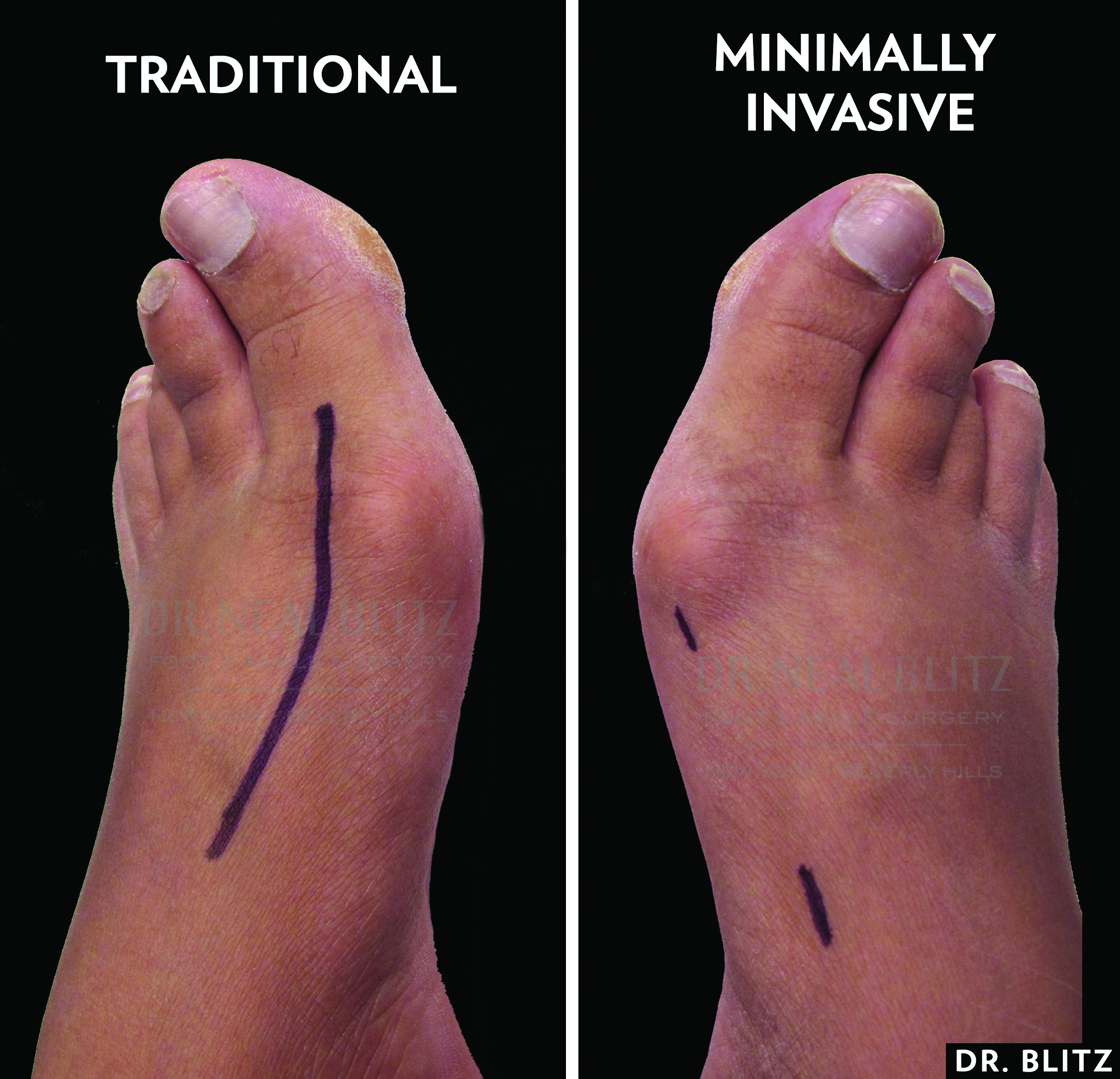 One can perform minimally invasive bunion surgery through a series of tiny incisions rather than one long incision as with a traditional bunionectomy.