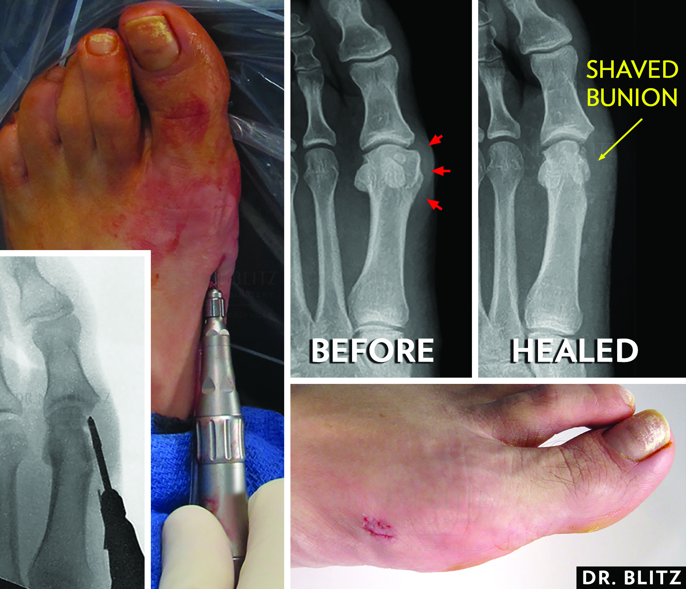 Here one can see shaving of a bunion with minimally invasive techniques. Make a single small incision on the side of the foot and use a high speed bur to shave the bunion under a live intraoperative X-ray.