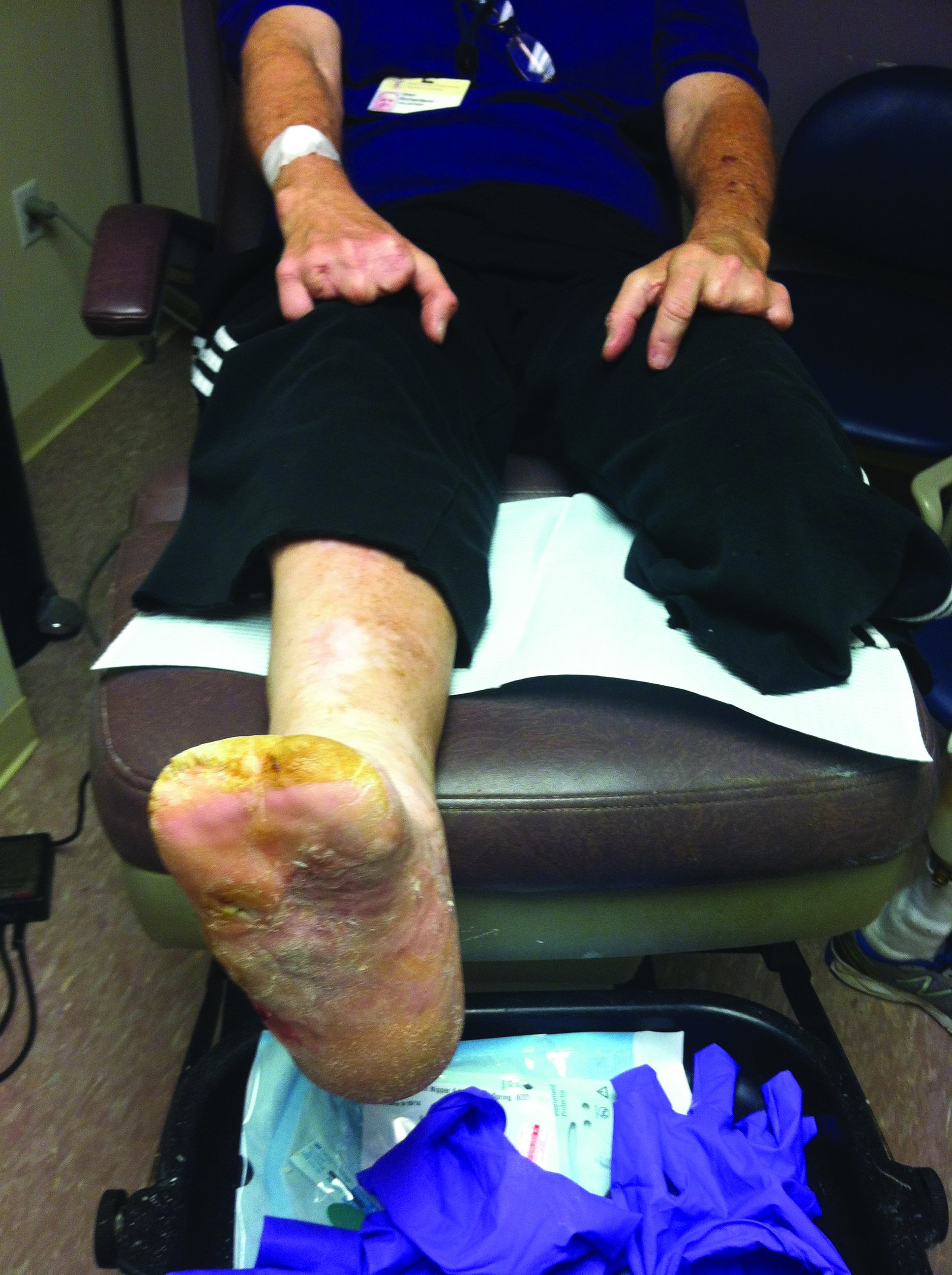This patient underwent two below-knee amputations. The strength and depth of patients' social and support networks, the patient-centered parameters, are well known to have an effect on the overall patient outcome, especially when dealing with an amputation. (Photo courtesy of Barry Rosenblum, DPM)