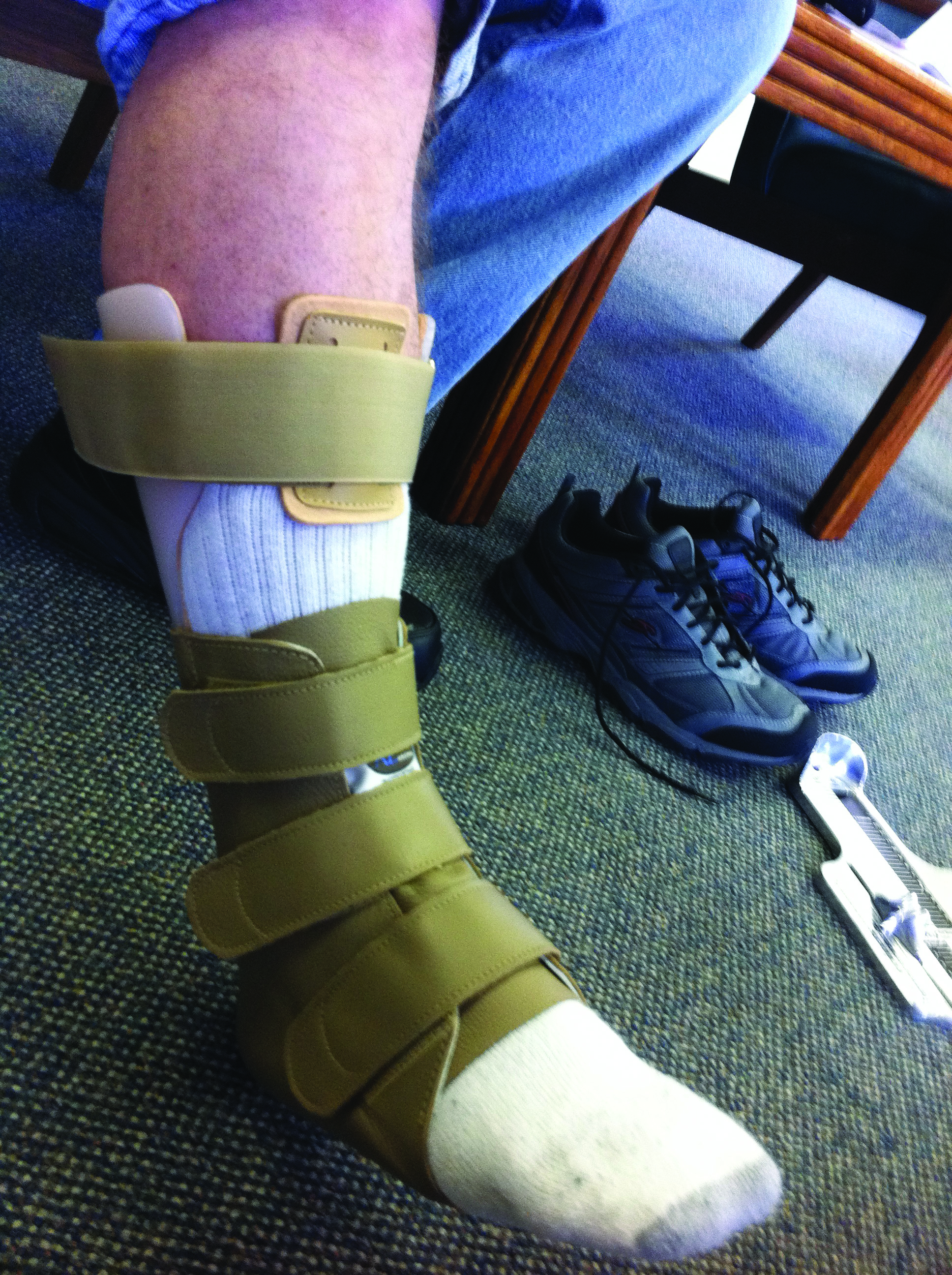 "Gene Mirkin, DPM, says the Arizona brace (shown here) is ""by far"" his most commonly prescribed non-hinged AFO. He notes the Arizona brace provides ""phenomenal stability"" for unstable biomechanical conditions, whether involving soft tissue, bone, or both. (Photo courtesy of Jonathan Moore, DPM)"