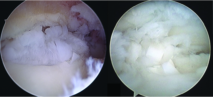 The senior author has seen occurrences of hyperproliferation of growth of the pellets above the level of the talar dome in patients who received DeNovo as shown above.