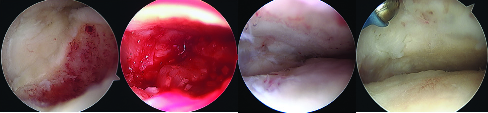 The senior author performed a second look, a third look and scheduled a fourth look in the patient with DeNovo, noting the pellets continue to grow over a four-year period as shown above. The first two images are from the first surgery, showing chondroplasty and implantation of DeNovo. The third image was from the second surgery 13 months later. The last image is 28 months after the first surgery. Note that the repair continued to fill in.