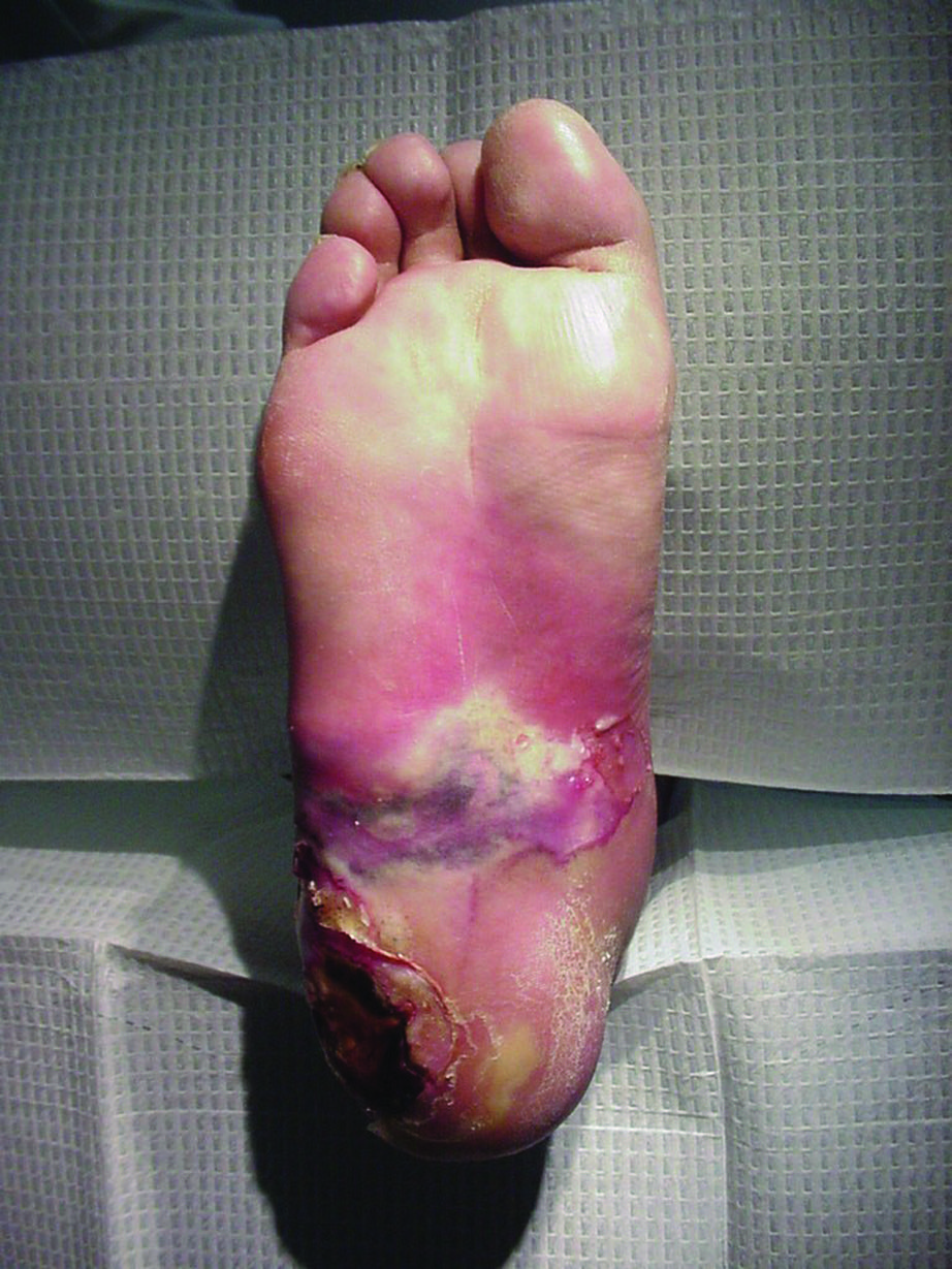 This foot has a Staph aureus infection. Ceftobiprole has demonstrated activity against vancomycin-intermediate and vancomycin-resistant Staphylococcus aureus. (Photo courtesy of Mark Kosinski, DPM)