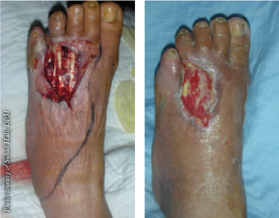 Here is a foot before and after treatment for MRSA. Oritavancin is in the semisynthetic new-generation lipoglycopeptide class of antibiotics. It is indicated for the treatment of adults with ABSSSI caused by susceptible organisms, including MRSA.