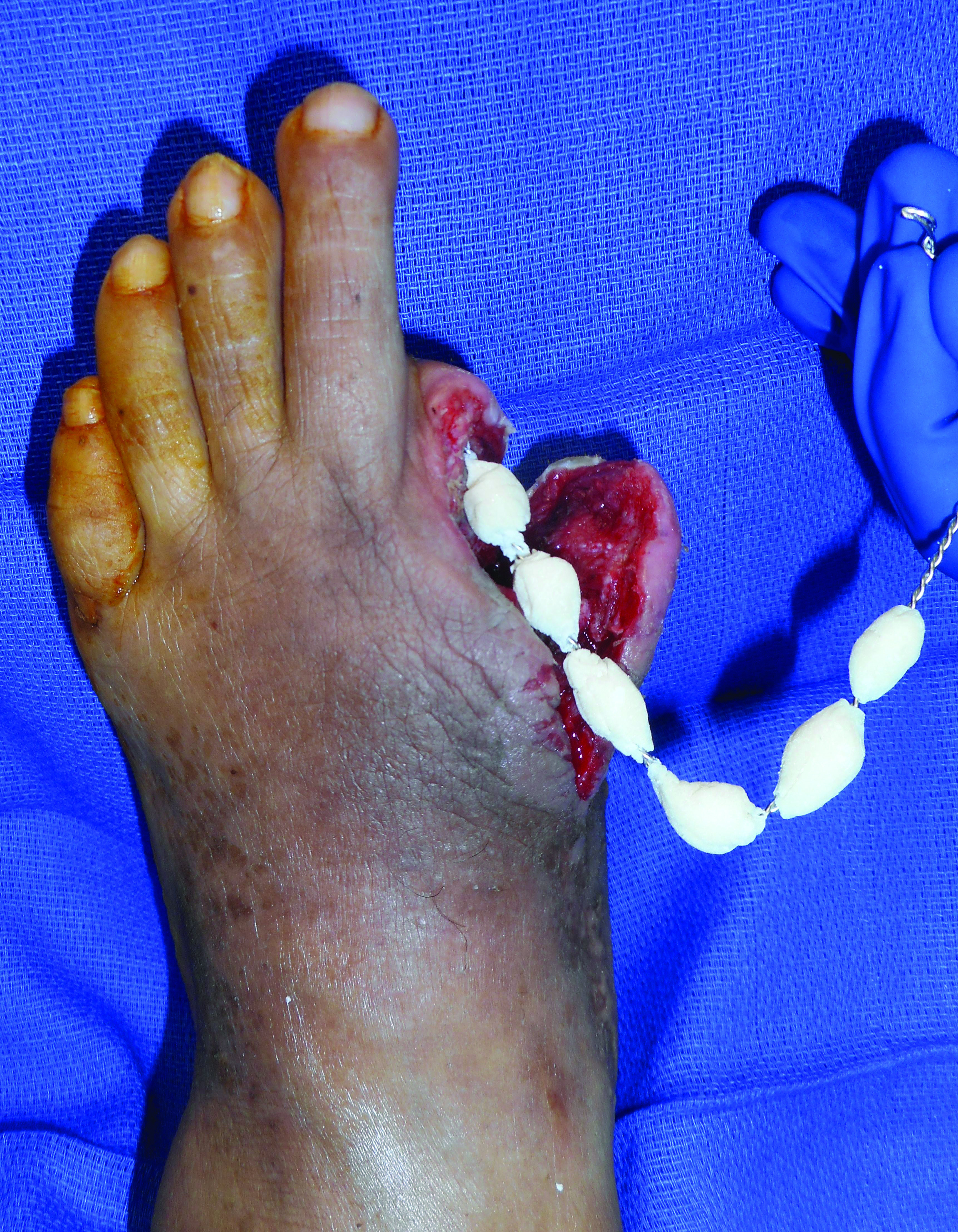 This intraoperative picture shows the application of antibiotic-loaded PMMA beads after a partial first ray amputation in the left foot.