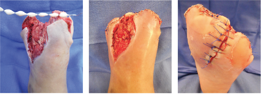These photos show the application of antibiotic-loaded PMMA beads after a transmetatarsal amputation.