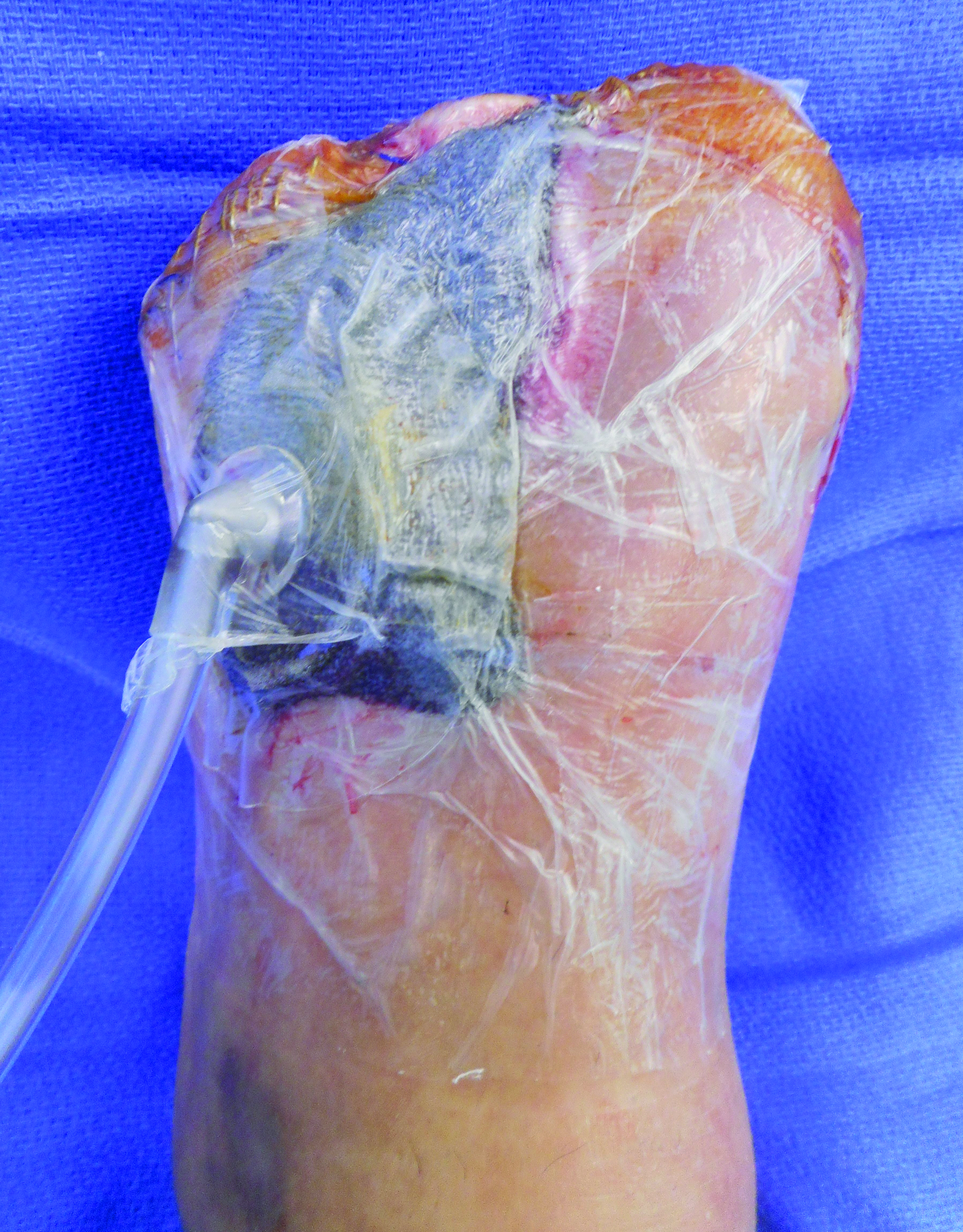 Following the application of antibiotic-loaded PMMA beads, surgeons utilized negative pressure wound therapy on the dorsal aspect of the left foot.