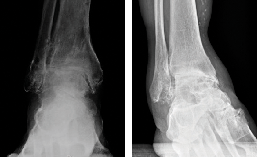 Longstanding varus imbalance correction during primary and revision TAR may require the release of medial tissues and reinforcement of lateral tissues.