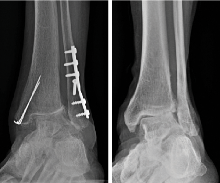 Chronic valgus imbalance correction may require the release of lateral tissues and reinforcement of medial tissues.