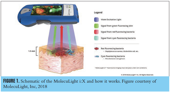 Figure 1. Schematic of the MolecuLight i:X and how it works. Figure courtesy of MolecuLight, Inc, 2018