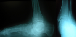 Photo B. An elderly active gentleman presented with a chief complaint of painful bilateral feet and ankles, shown here in pre-op radiographs.