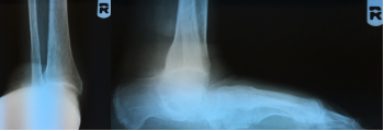 Photo D. Here one can see pre-op radiographs of the right foot and ankle.