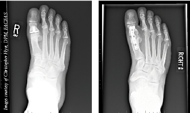 The above X-rays show hemi-implant failure (left) and subsequent revision to fusion (right). (Images courtesy of Christopher Hyer, DPM, FACFAS)