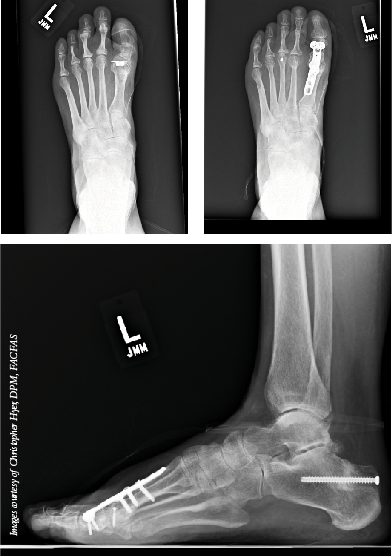 These X-rays show the failure of a silastic implant and subsequent revision with distraction autograft from the calcaneus. (Images courtesy of Christopher Hyer, DPM, FACFAS)