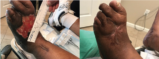 Here one can see a large pedal DFU three months after standard wound care treatments (left) and a healed wound (right) four months after initiation of advanced wound care therapies.
