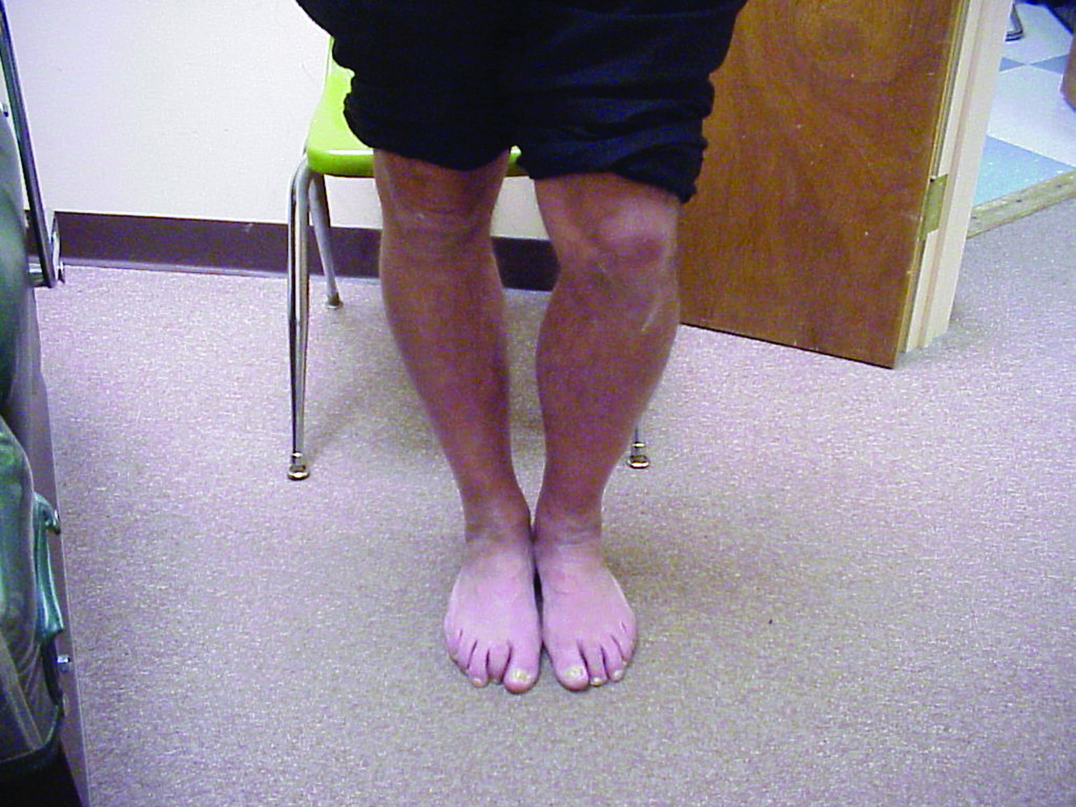 Here one can see a leg length discrepancy. For symptomatic cases, one can achieve good outcomes by adding a heel lift to the rearfoot post of an orthotic device on the shorter limb, according to Dianne Mitchell-Pray, DPM. In regard to materials, she uses either high durometer EVA or Korex, adding that both materials retain their shape well. (Photo courtesy of David Levine, DPM, CPed)