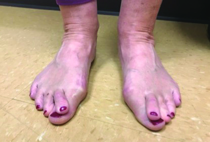 This bilateral weightbearing examination reveals underlapping hallux and a medial transverse plane deformity of the lesser metatarsophalangeal joints (MPJs).