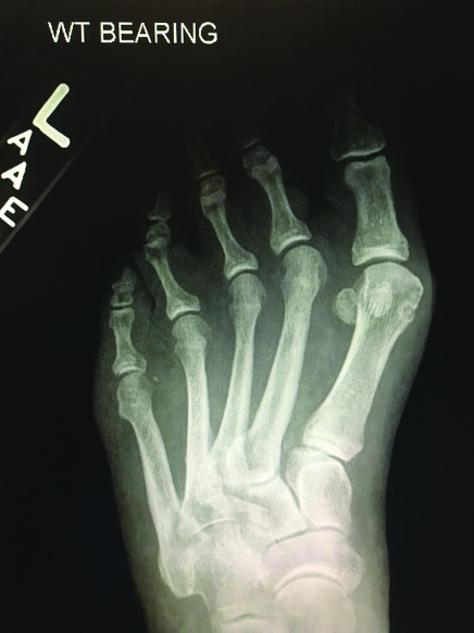 Here one can see a severe hallux valgus deformity with a lesser MPJ lateral transverse plane deformity without severe digital contractures.