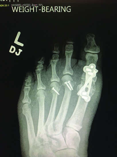This photo shows the foot two months following lesser metatarsal osteotomies, collateral ligament reconstruction and first MPJ fusion.