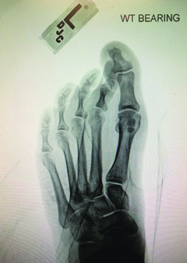 This X-ray shows a mild increase in the hallux valgus angle with medial deviation of the second and third MPJs with digital contractures.
