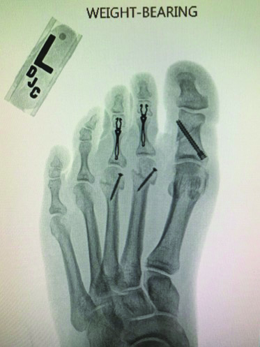 Here is the foot at six weeks post-op following a corrective proximal phalanx osteotomy and medial translational osteotomies of the lesser metatarsals with intramedullary fixation of the hammertoes.