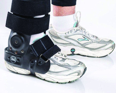 "Patrick DeHeer, DPM, FACFAS, says the TayCo External Ankle Brace (shown in this photo) provides a lightweight alternative to cast boots and ""excellent stability"" while allowing patients to comfortably use their own jogging shoes or work boots."