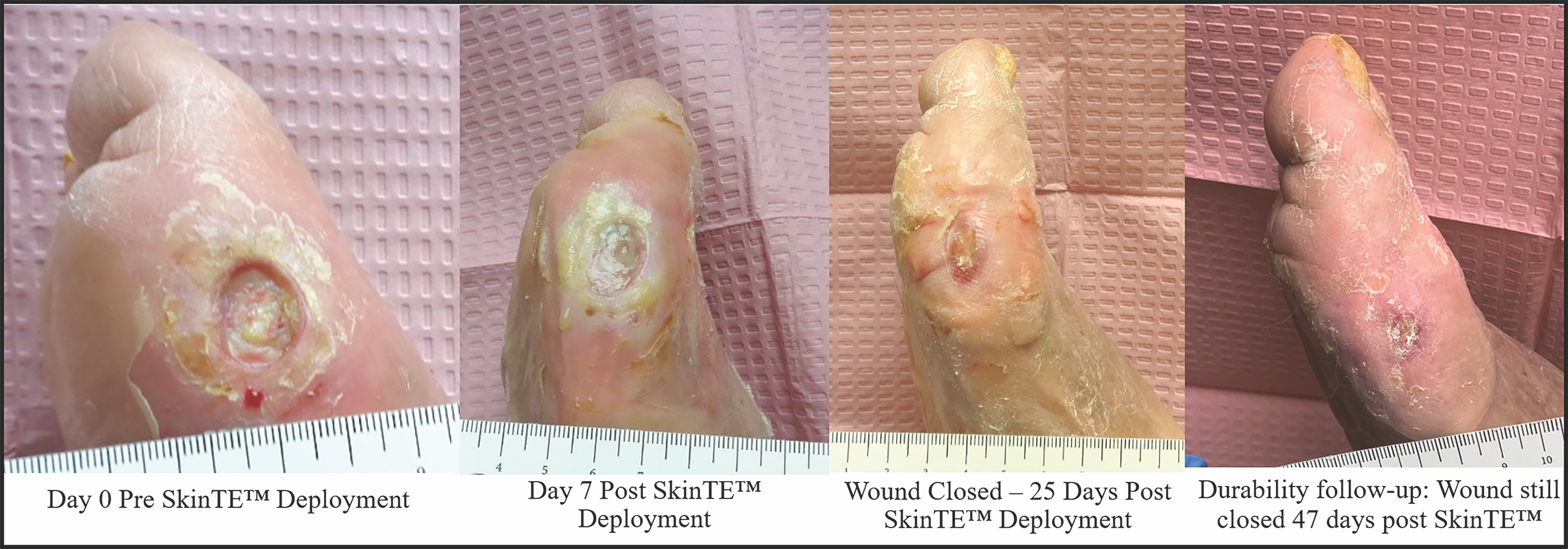 A patient presented with a 1.7 cm2  Wagner 2 DFU of the right medial foot over the first metatarsal involving joint capsule (photo 1). Photo 2 shows the wound seven days following the use of SkinTE therapy. The healing progression over 25 days demonstrated durable reepithelialization and full closure of the chronic wound (photo 3). Photo 4 shows the wound still closed 47 days following SkinTE application.