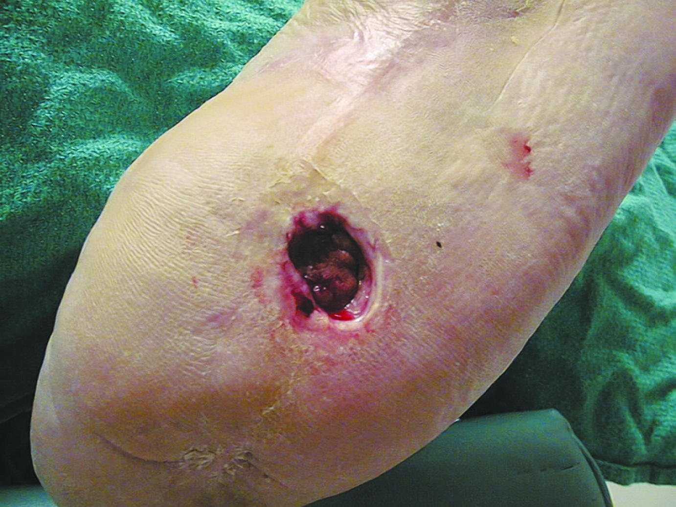 Diabetic foot ulcerations (DFUs), as shown above, are one of the most common complications associated with diabetes with an annual incidence of 6.3 percent worldwide. Diabetic patients have a 19 to 34 percent likelihood of having lower extremity ulcers in their lifetime. Photo courtesy of David G. Armstrong, DPM, MD, PhD