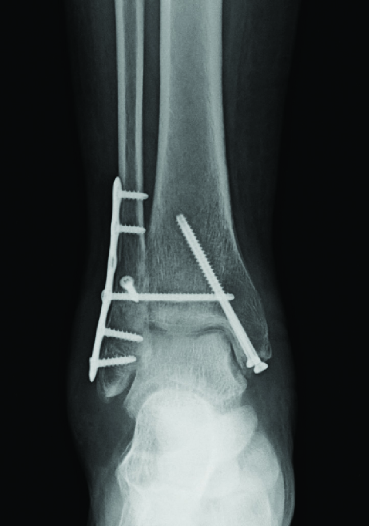 This AP radiograph demonstrates open reduction internal fixation of a bimalleolar ankle fracture and screw fixation of the syndesmosis.