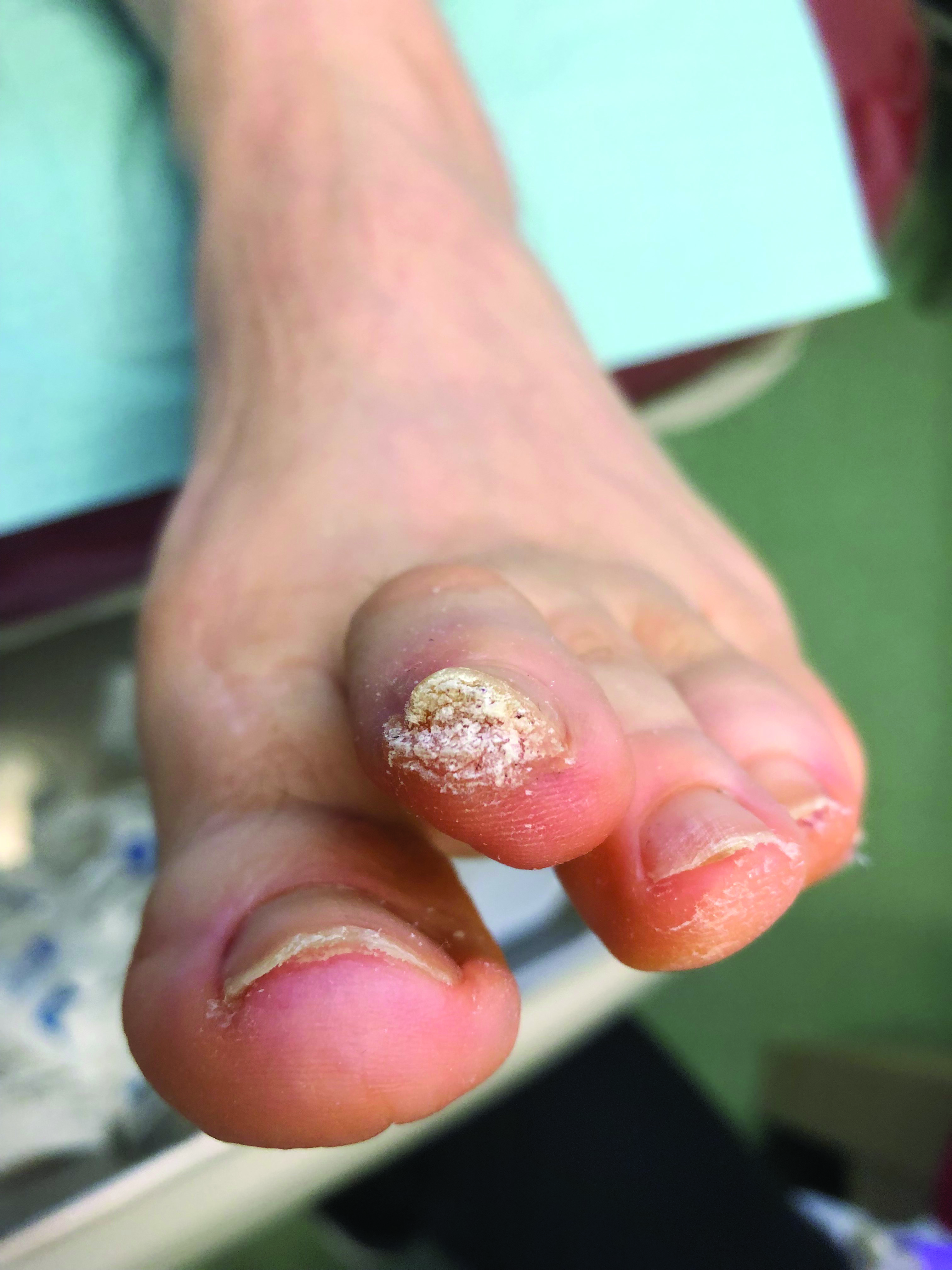Here one can see an example of a subungual wart. Both an epidermal abrasion and a transiently impaired immune system must have been present to allow this lesion to form.