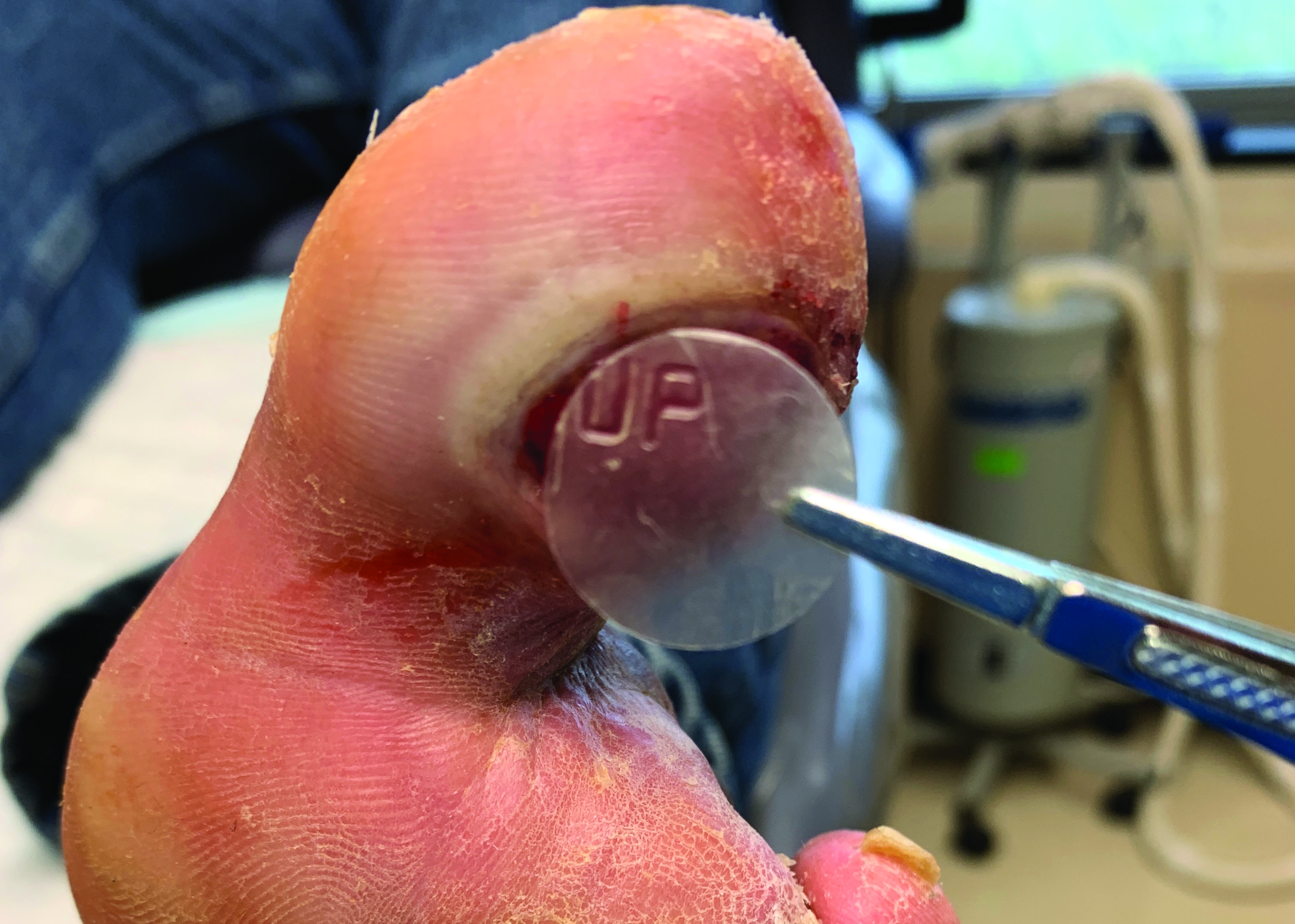 This photo shows the same plantar ulceration during application of an 18 mm EpiFix® (MiMedx) disc.