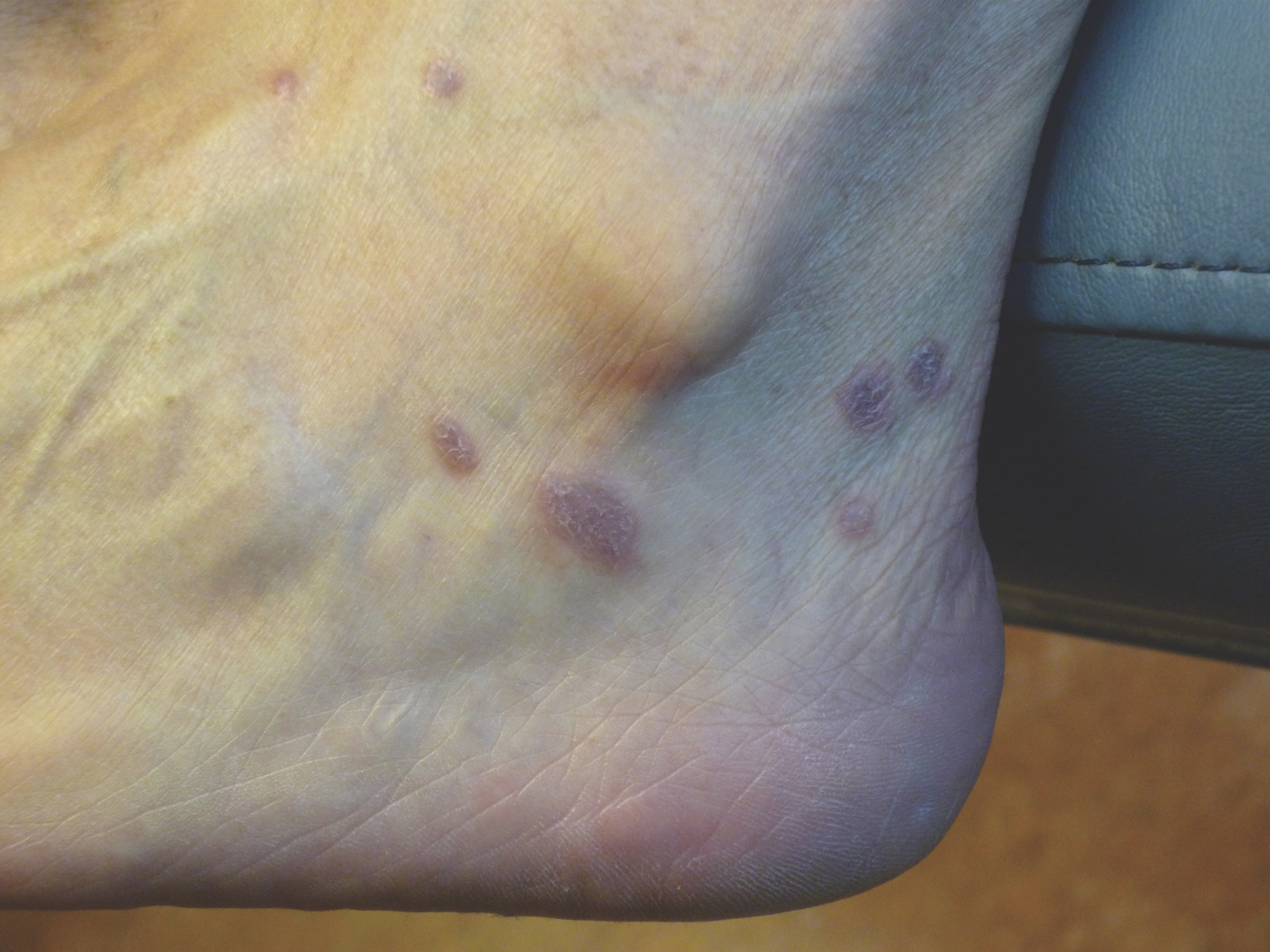 This photo shows an example of lichen planus. Note the purple plaques with a fine scale.