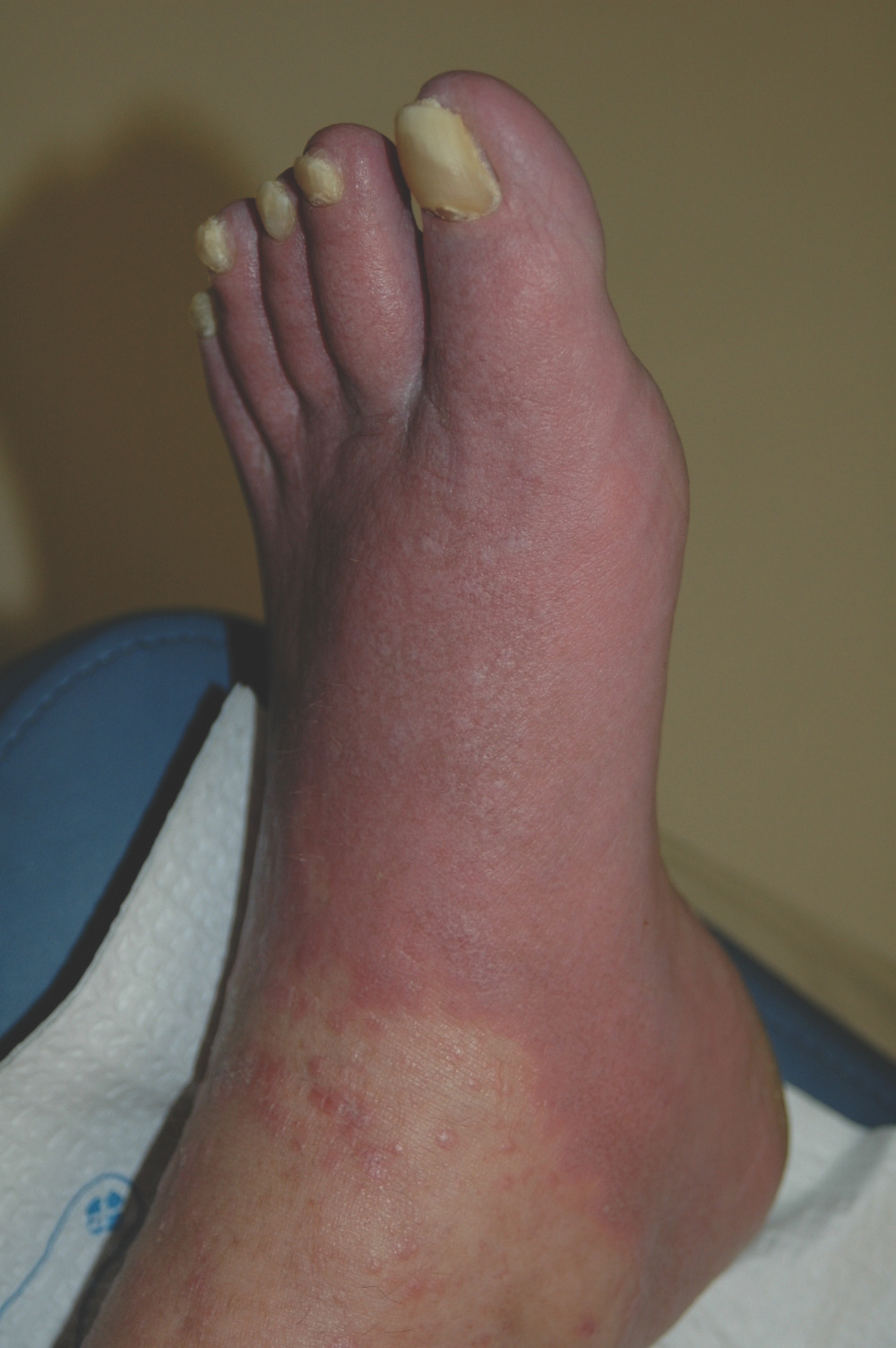 The patient in this photo developed a contact dermatitis from urea cream. Note the line of demarcation. She had the same rash on her other foot and hands.