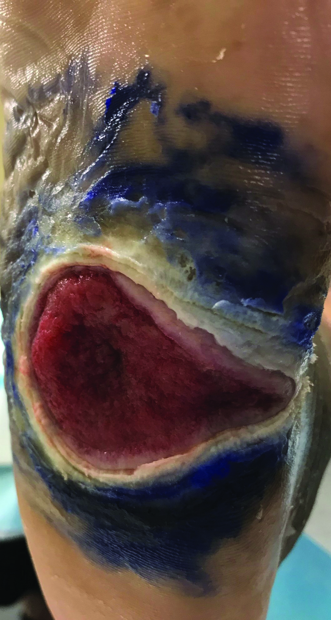 In the example seen here, the foam dressing extended beyond the wound bed, resulting in periwound maceration. The blue color surrounding the wound is from application of gentian violet solution.
