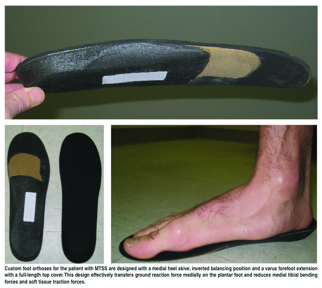 Custom foot orthoses for patients with medial tibial stress syndrome may incorporate a medial heel skive, an inverted balancing position and a varus forefoot extension with a full-length top cover. The design effectively transfers ground reaction forces medially on the plantar foot and reduces medial tibial bending forces, and soft tissue traction forces.