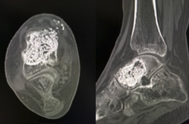 Figure 4 In these images, one can see a CT nine weeks after the procedure. The CT shows maintenance of the talar cortex and excellent incorporation of the bone graft with PRP.