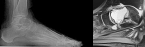 Figure 1 Here one can see a lateral radiograph (left) exhibiting a large radiolucent void within talus. The MRI (right) reveals a hemorrhagic cystic lesion encompassing the majority of the talus and extending to the articular surface.