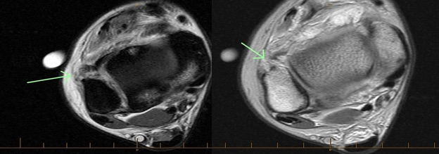 Here one can see T1- and T2-weighted images of a patient with a high ankle sprain. Obtaining a MRI is helpful in confirming diagnosis and assessing injury severity.