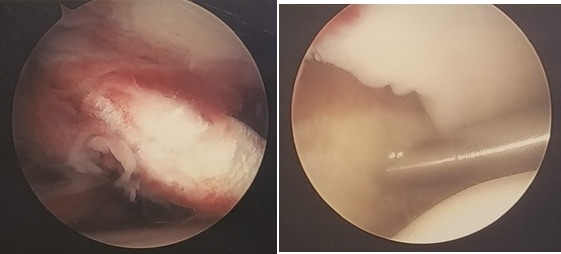 The arthroscopic photo on the left shows a ruptured anterior inferior tibiofibular ligament that has fallen into the lateral gutter. The photo on the right shows a probe pushing the fibula, revealing diastasis of the syndesmosis.