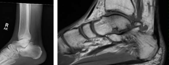 This plain radiographic image on the left reveals an avulsion fracture of the posterolateral talus. The magnetic resonance imaging (MRI) image on the right corresponds with this same finding.