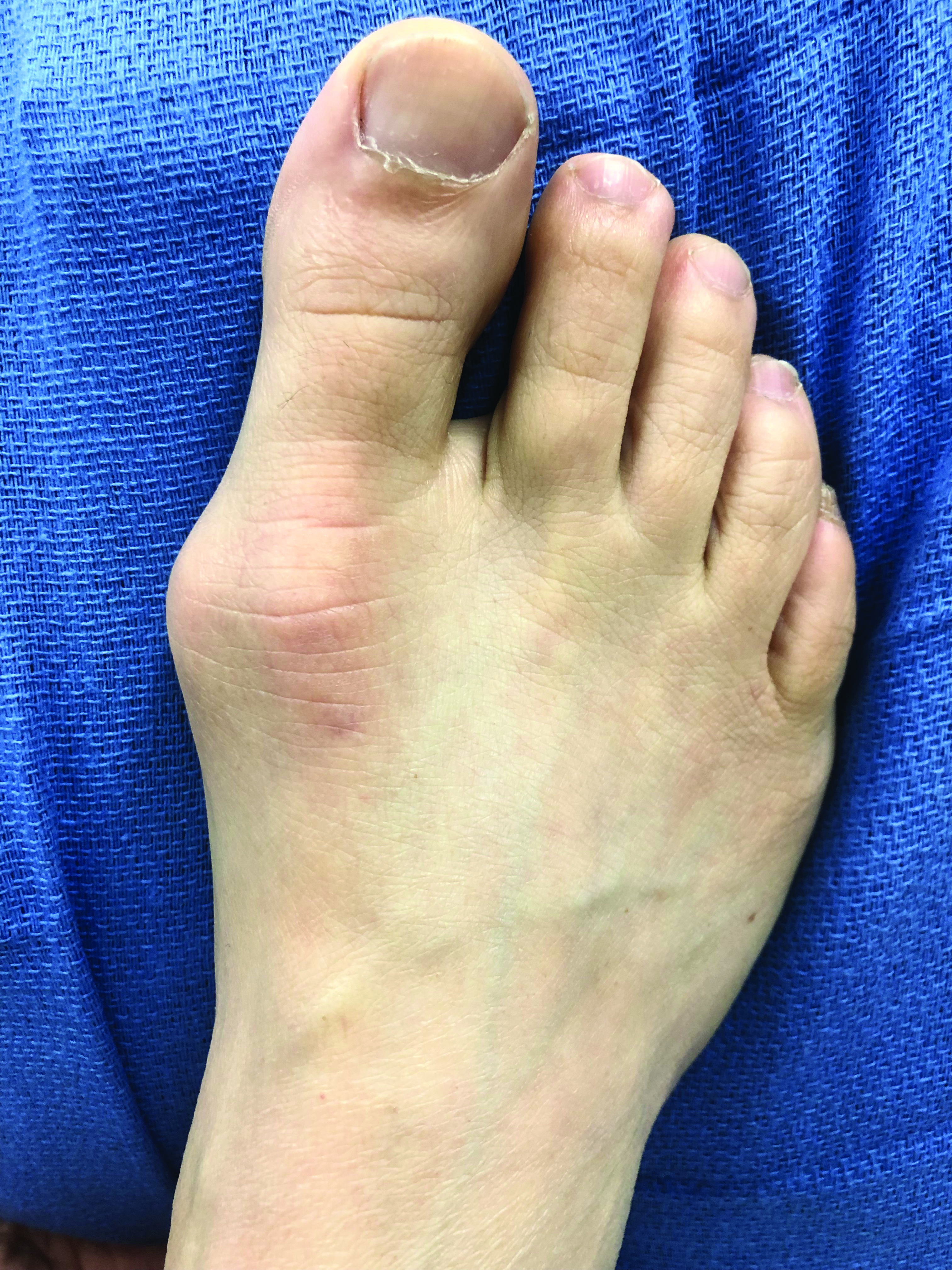 This photo illustrates a patient's foot prior to undergoing minimally invasive bunion surgery.