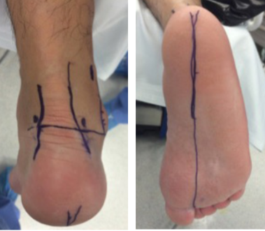 These photos illustrate pertinent landmarks in establishing portal placement and orientation during posterior ankle arthroscopy.