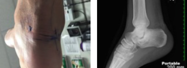 Note the clinical presentation (left) and X-ray (right) one week after endoscopic excision of the fracture fragment and debridement of the flexor hallucis longus tendon.