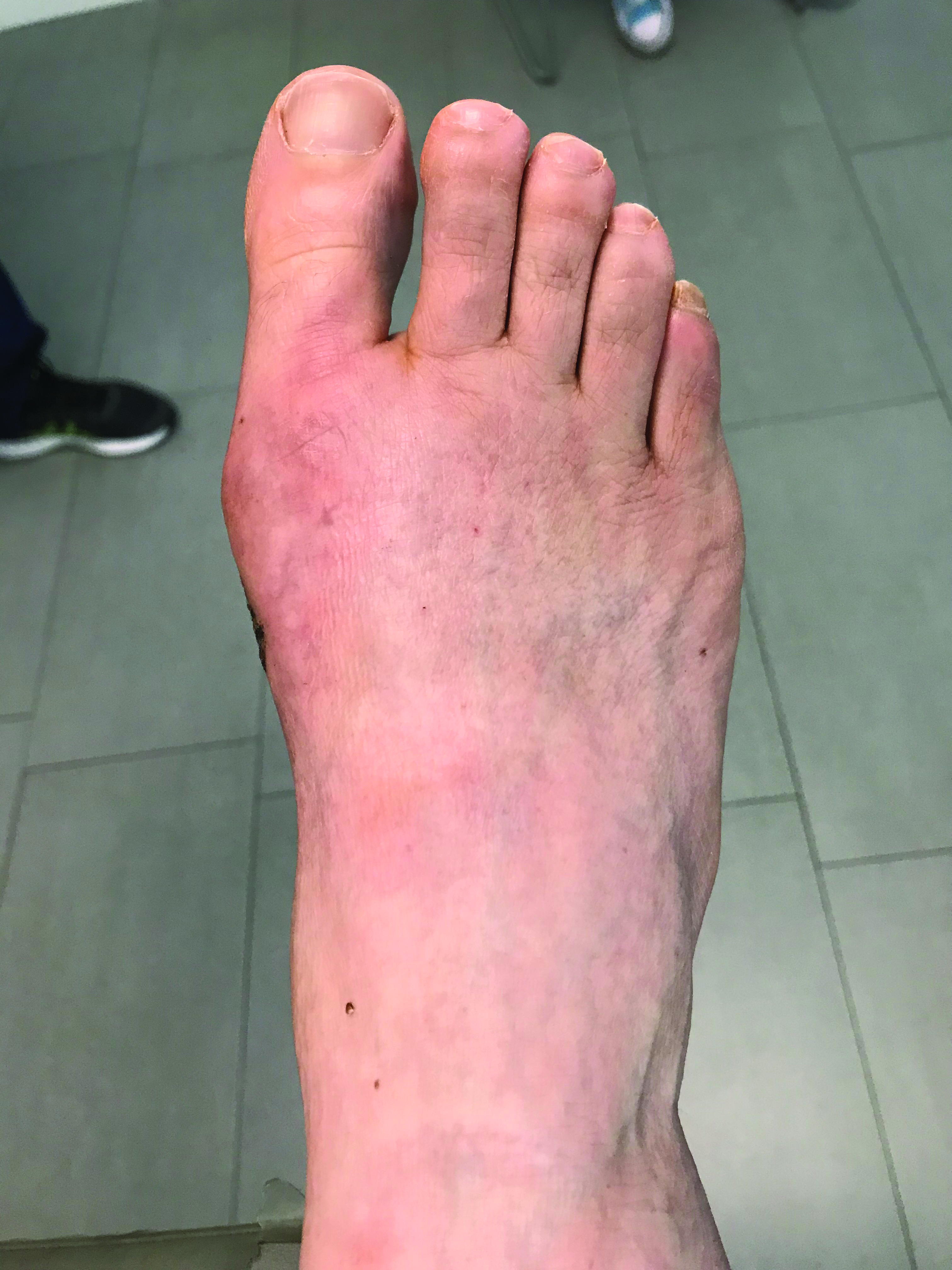 This photo illustrates a patient's foot after undergoing minimally invasive bunion surgery.