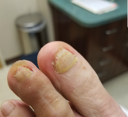 Figure 1: Here one can see the patient's nail after debridement and after two months of topical therapy as described by the author.