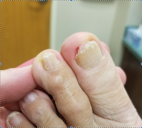 Figure 2: Here one can see the same nail after debridement and after ten months of topical therapy as described by the author.